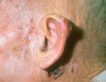 cancer de piele epiteliom