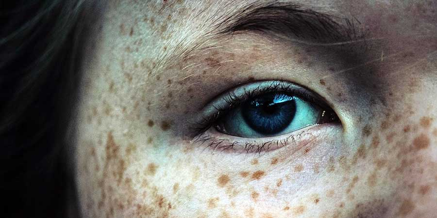 cancer de piele la ochi
