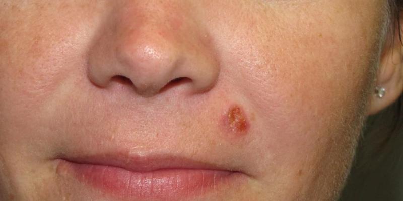 cancer de piele scuamos