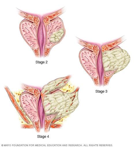 cancer de prostata acinar