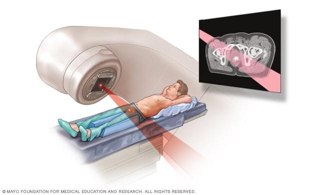 cancer de prostata nom