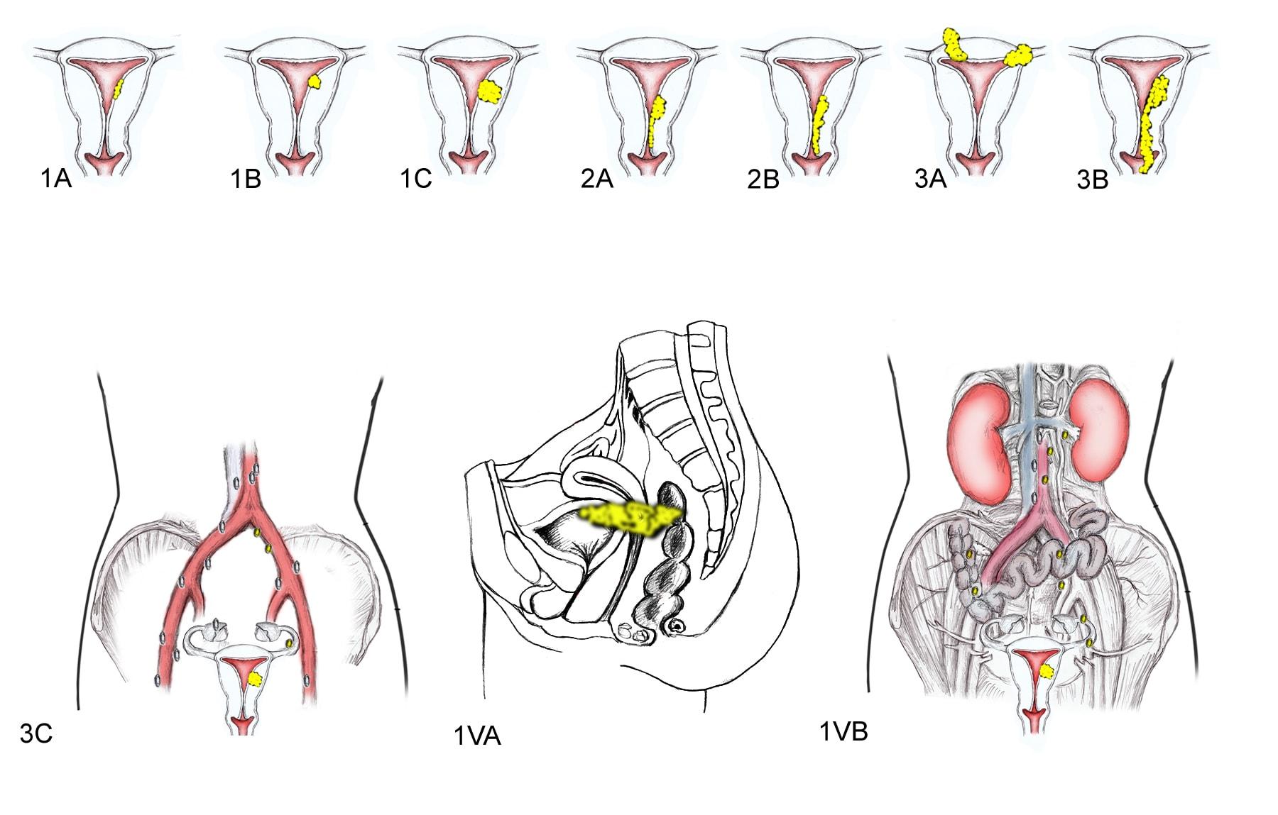cancer endometrial metastasis)