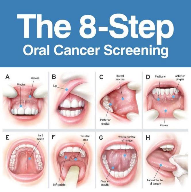 cancer glande salivare simptome)
