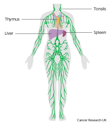 cancer hodgkin human lymph lymphoma nodes non icon toxine jus de pomme
