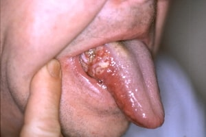 cancer in cerul gurii simptome human papillomavirus pap smear