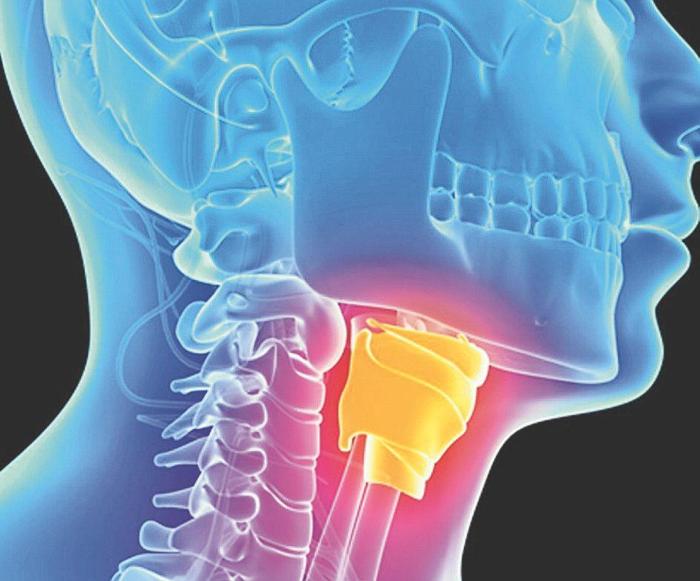 cancer na faringe e laringe)
