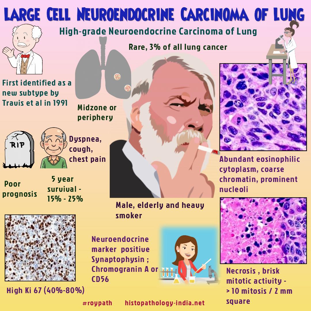 cancer hepatic stadiul 2