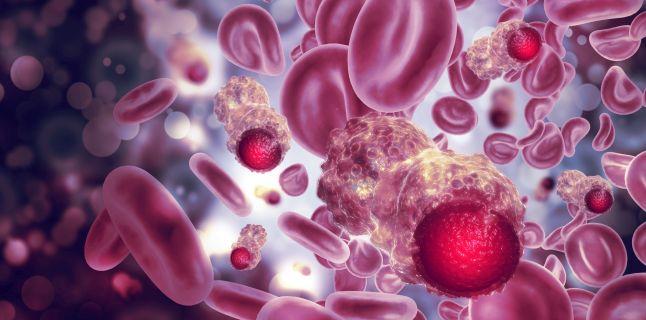cancer peritoneal stadiul 4)