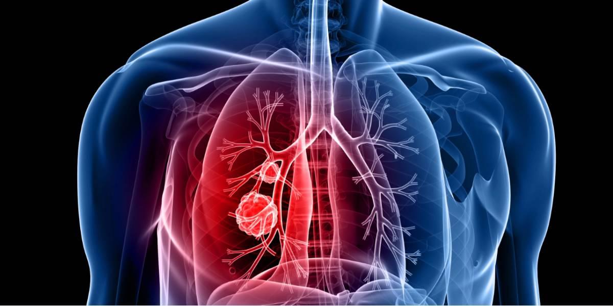 cancer pulmonar fara metastaze
