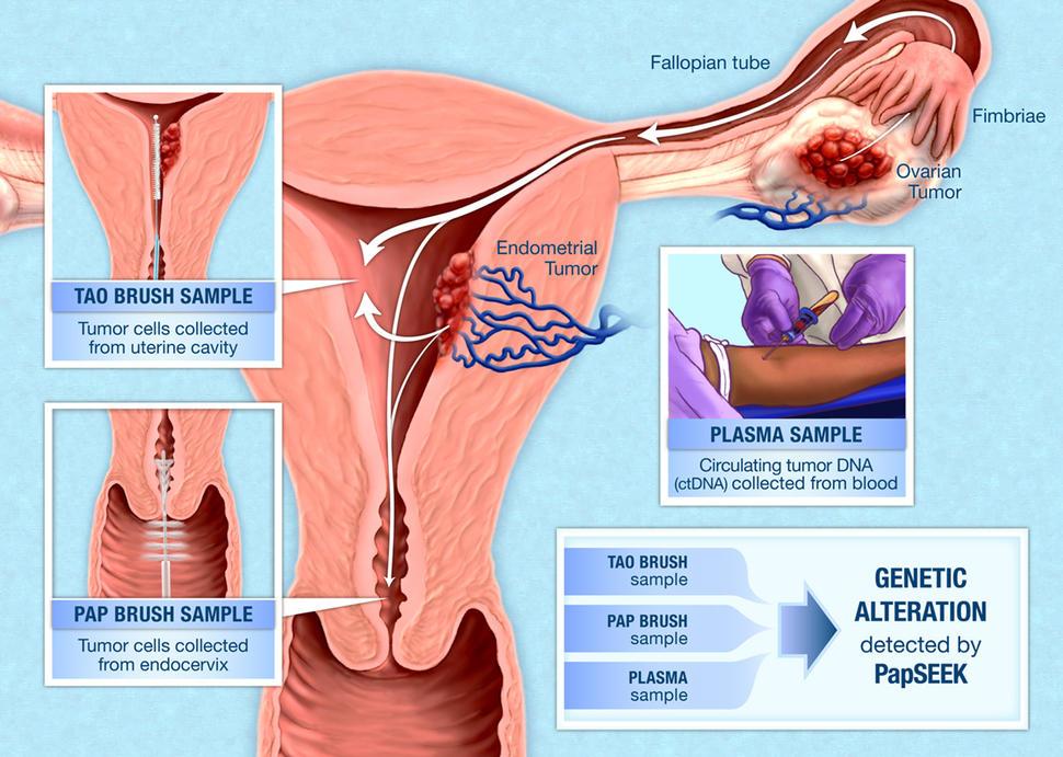 cancer uterus diagnostic)