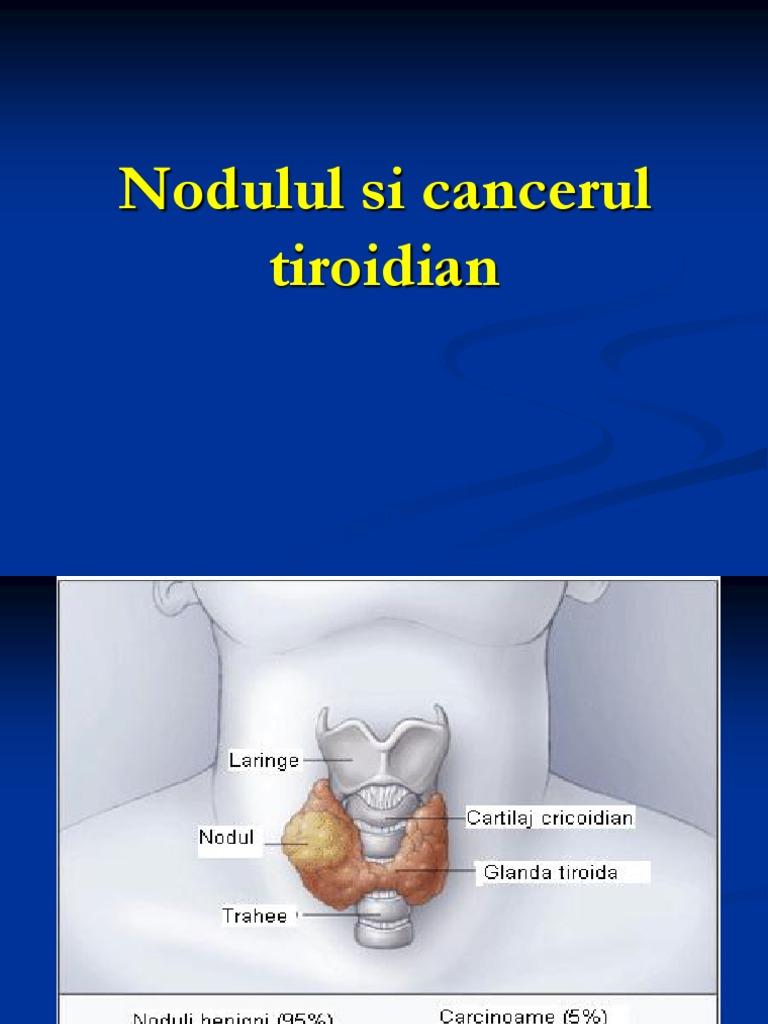 cancerul anaplazic