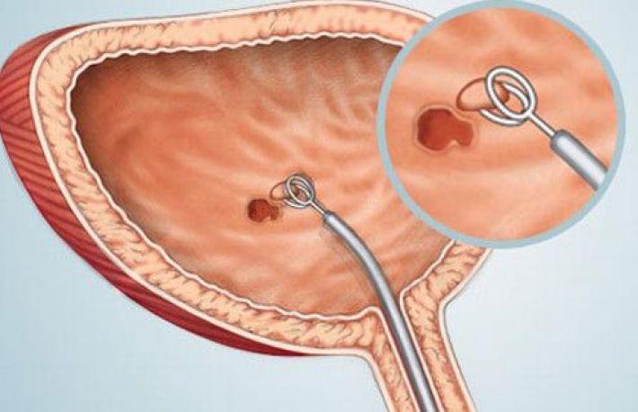 cancerul de vezica urinara la barbati)