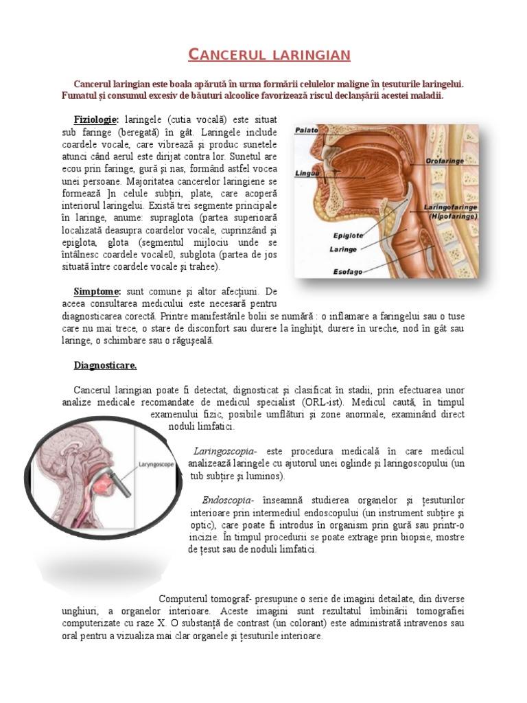 cancerul laringian se vindeca)