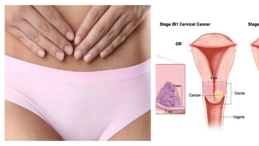cancerul uterin la femei