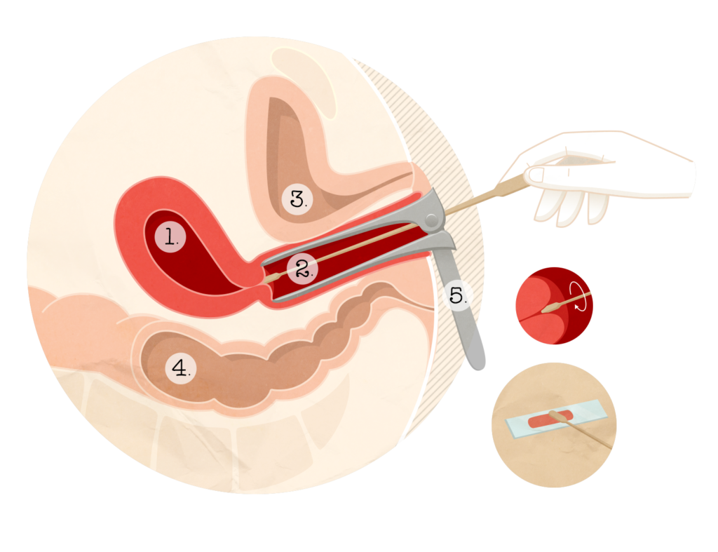 cellule papillomavirus frottis)