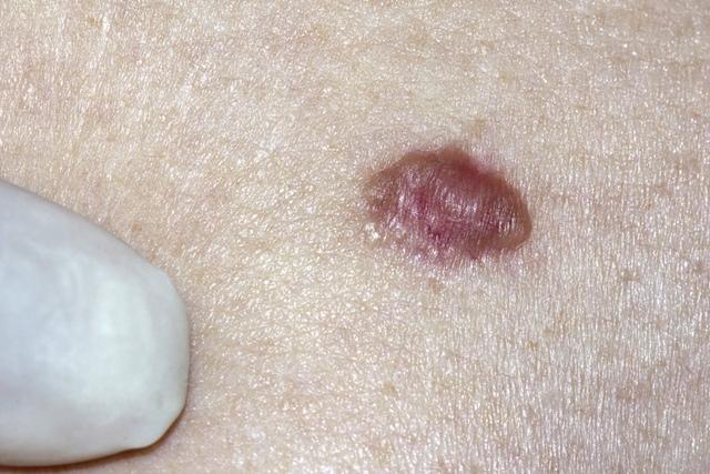 cancerul de piele simptome)
