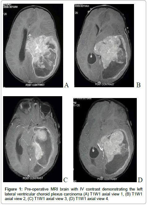choroid plexus papilloma tumor