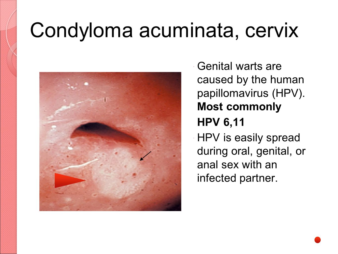 condyloma acuminata and pregnancy)
