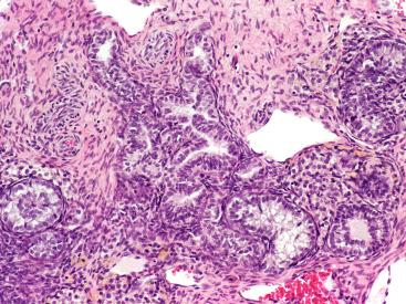 Hpv virus behandlung frau Condyloma acuminatum mit jelent