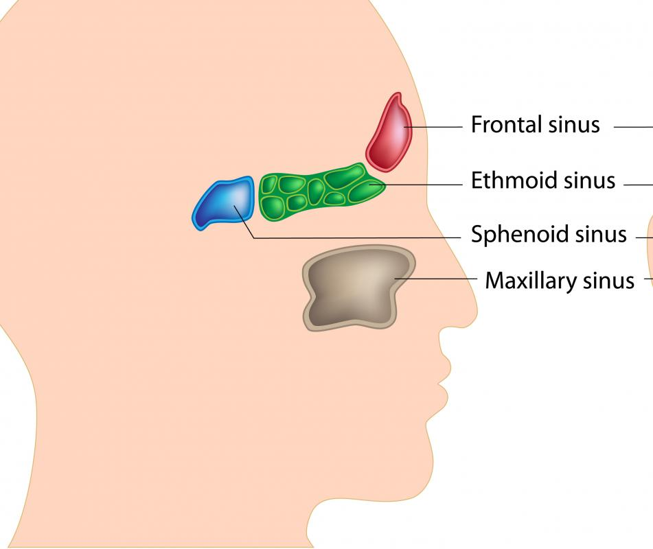 inverted papilloma nose pain)