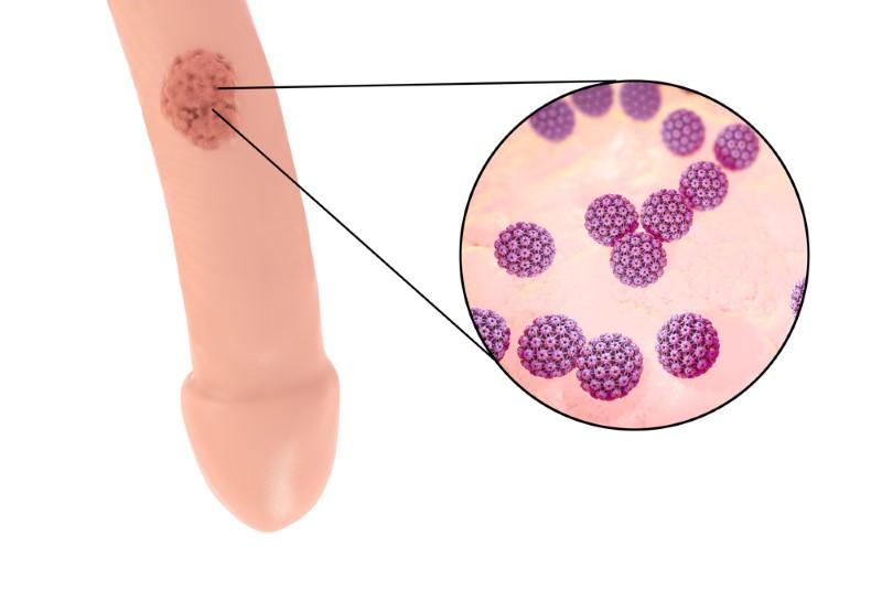 hpv virus warzen entfernen