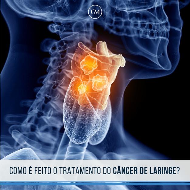 cancer laringe tratamento