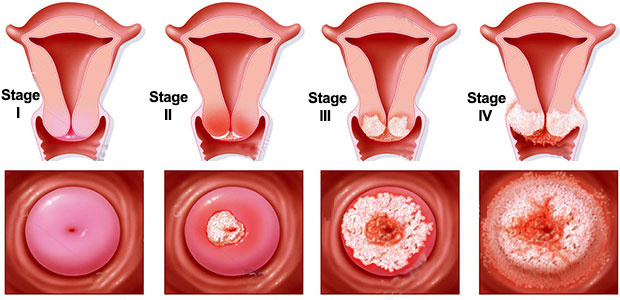 Cancer of The Female Lower Genital Tract - kd-group.ro