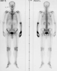 cancer pulmonar metastaze osoase papillomavirus french