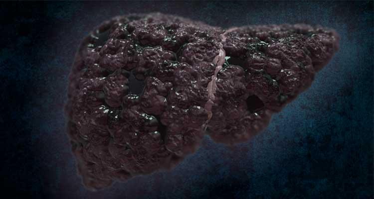 cancer figado urina escura