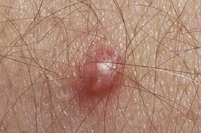 papilloma virus skin