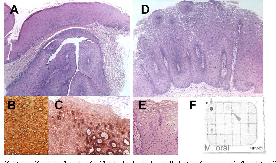 ductal papilloma of salivary gland origin)
