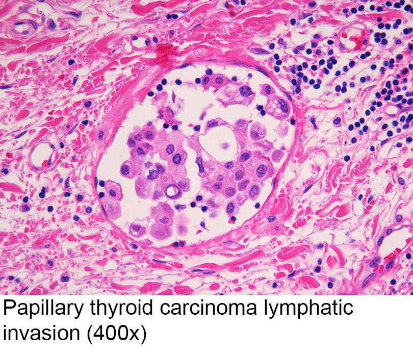 papillary thyroid cancer vascular invasion human papillomavirus vaccine numbers