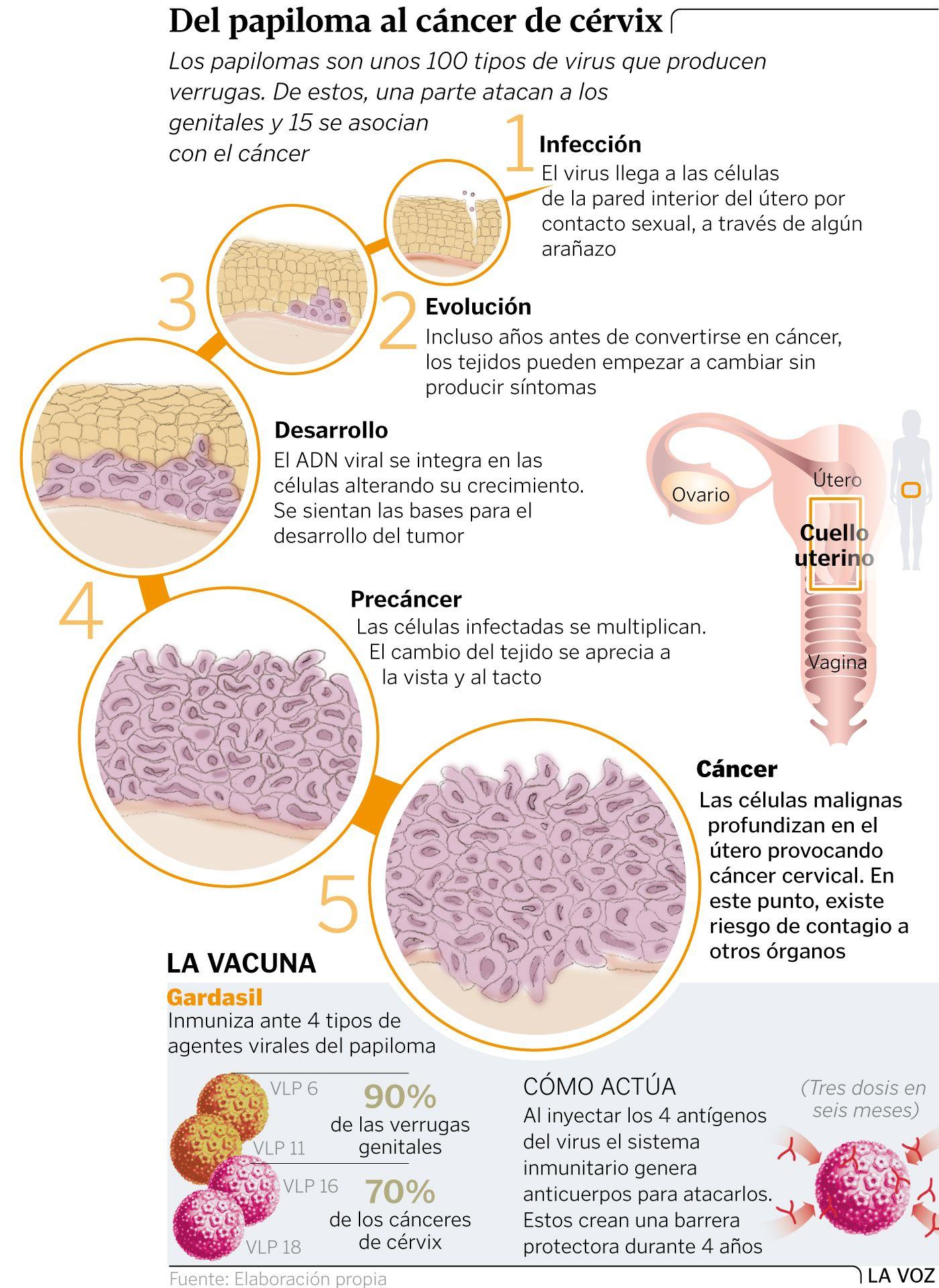 papiloma y cancer de utero)