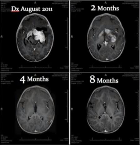 neuroendocrine cancer and cbd oil)