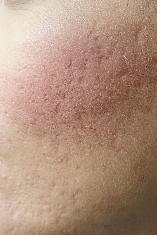 neuroendocrine cancer of the skin