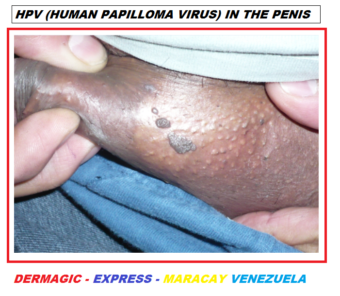 human papilloma virus male)