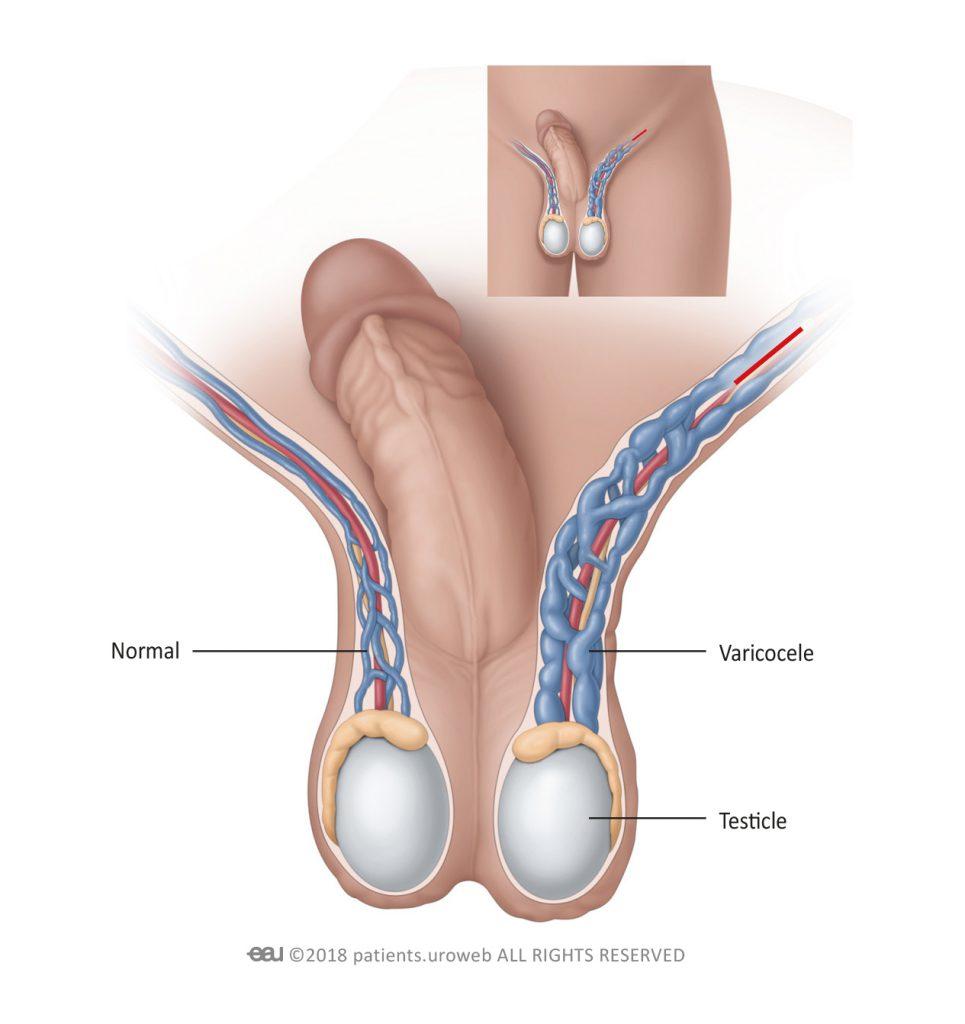cancer testicule varicocele)