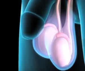 cancer testicular puede tener hijos