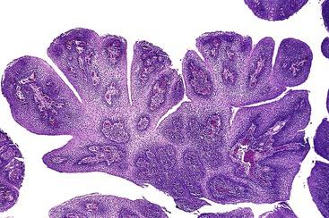 esophageal papilloma pathology