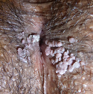 hpv warts breastfeeding link between hpv and testicular cancer