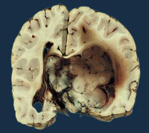 tumor cerebral papilloma)