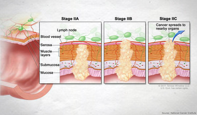 colorectal cancer 4th stage)