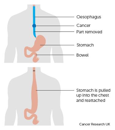 cancerul esofagian operat