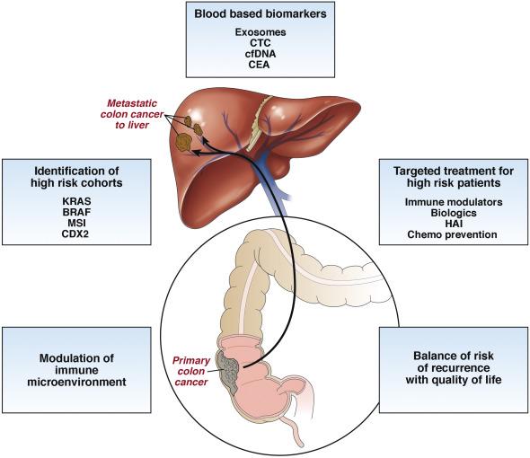 colorectal cancer hepatic metastases)