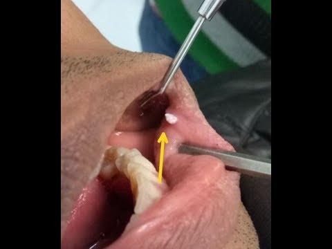 papilloma mouth treatment