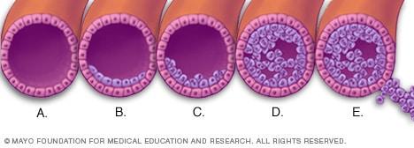 enterobius vermicularis hembra y macho hpv treatment dublin
