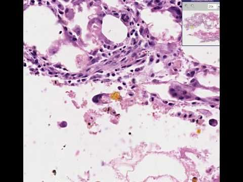 intraductal papilloma moose and doc)