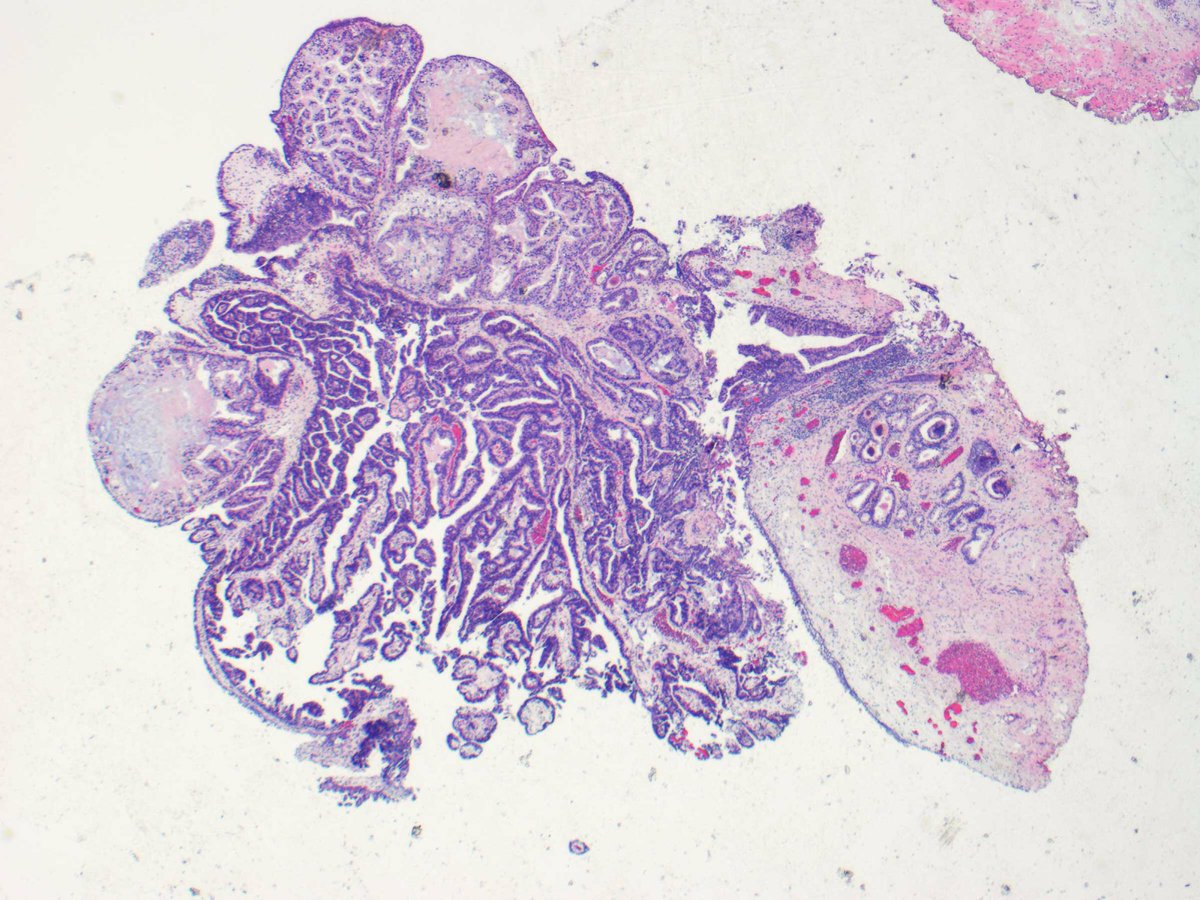 papillary lesion urethra