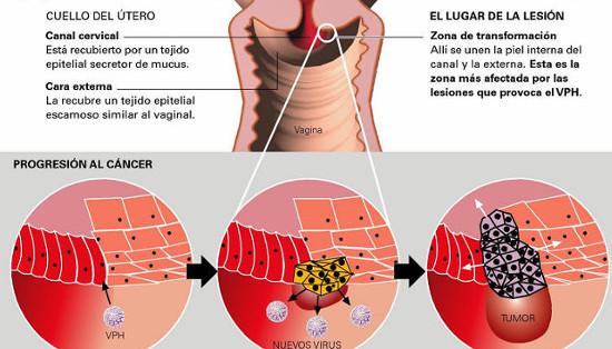 papiloma humano es cancer)