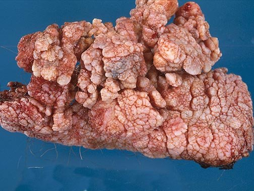 condyloma acuminatum is known as
